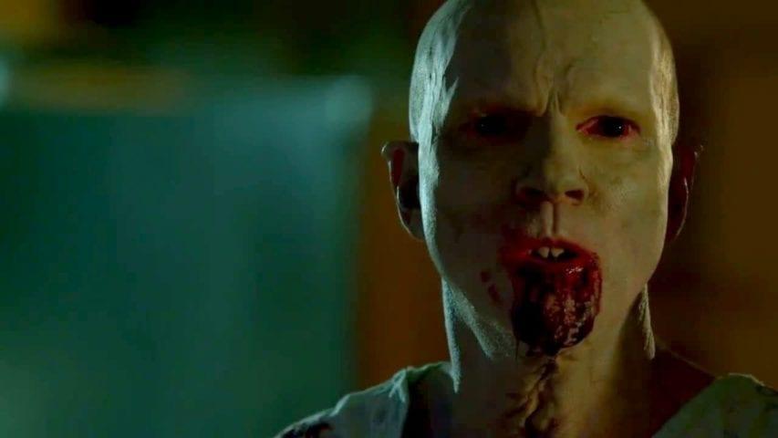 Serial o zombie: Wirus